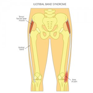 Iliotibial Band (Friction) Syndrome
