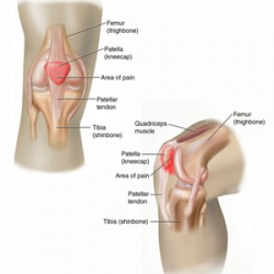 Patellofemoral Pain Syndrome (Runner's Knee)