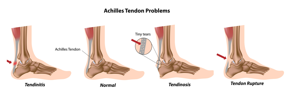 Achilles Injuries