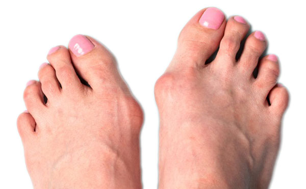 image of foot with bunion
