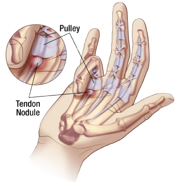 Trigger Finger Illustration | The Physio Store